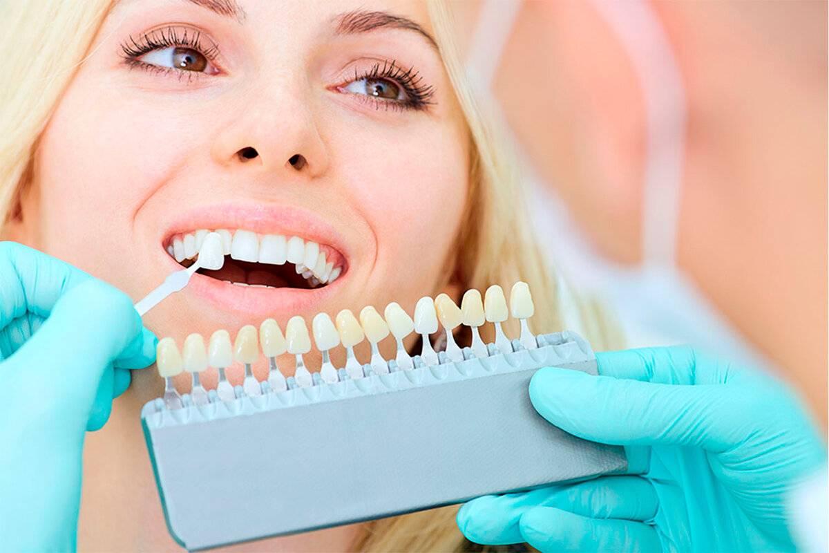 Эстетика улыбки: методы косметической реставрации зубов в современной стоматологии