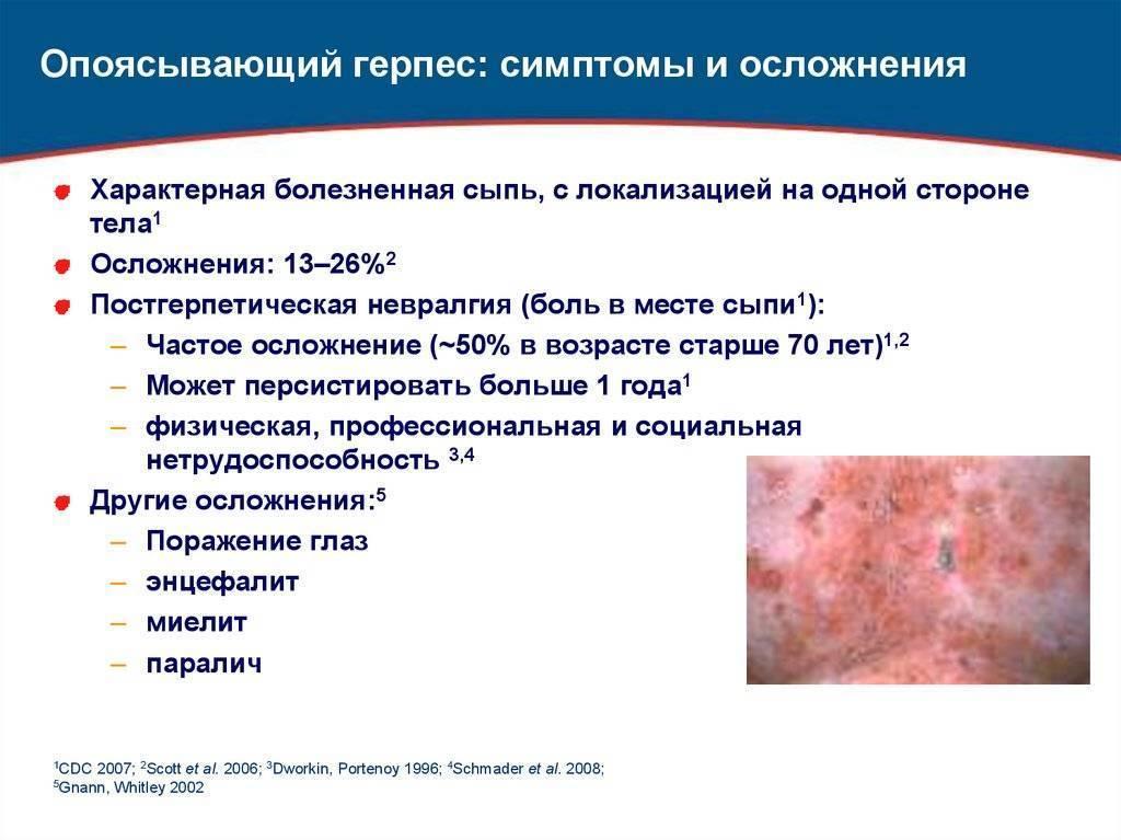 Герпес на теле: причины, лечение и профилактика