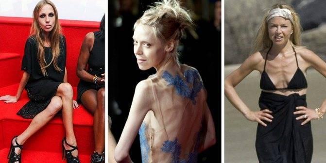 """я жива"". история девушки, которая довела себя до пропасти анорексии"