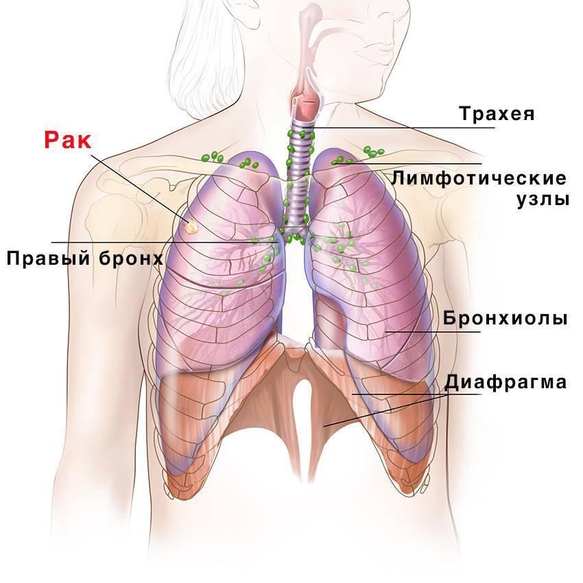 рак трахеи симптомы