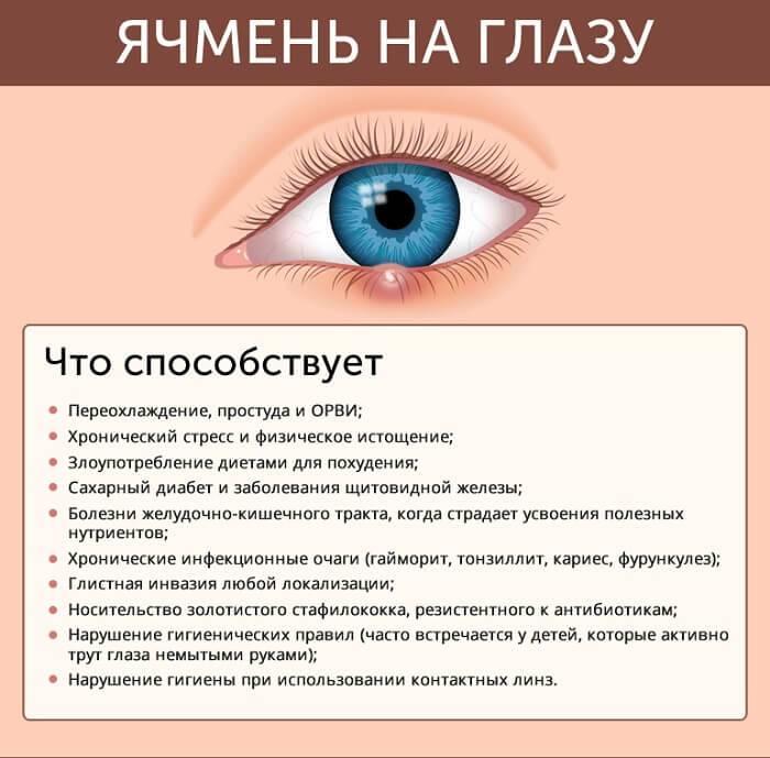 начальная стадия ячменя на глазу