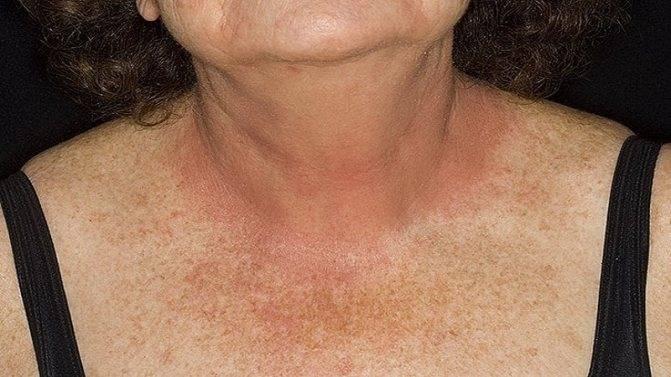 лечение дерматита и зуда