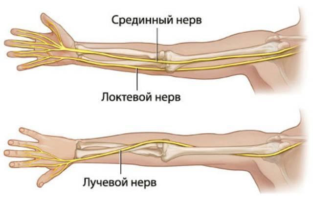 Невропатия лучевого, локтевого и срединного нервов.