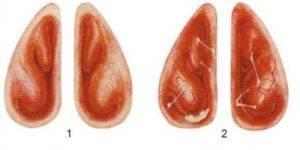 катаральный ринит