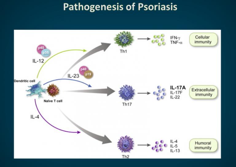 Причины возникновения псориаза: этиология и патогенез болезни