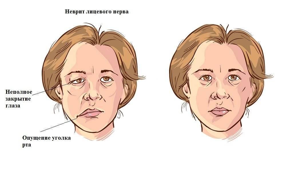 Неврит лицевого нерва: причины, симптомы и лечение