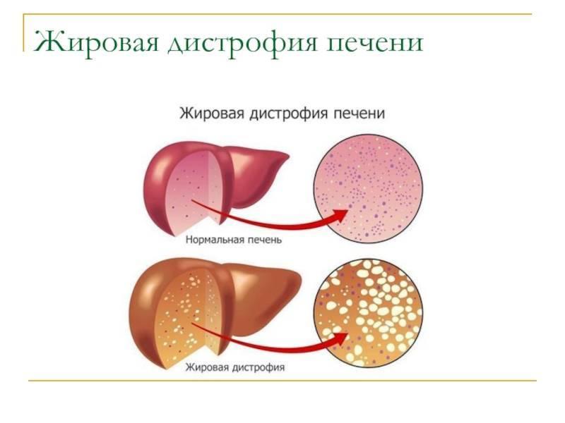 алкогольная жировая дистрофия печени
