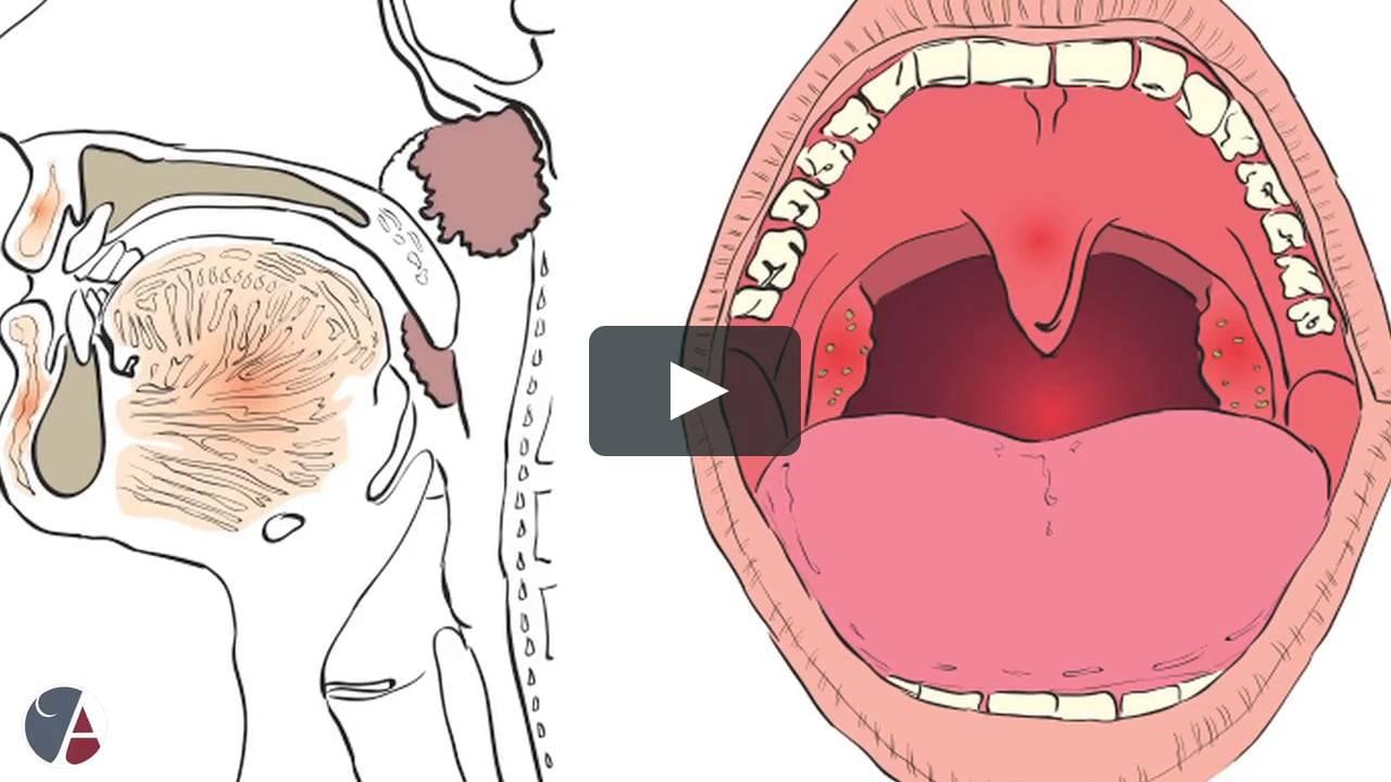 Рак горла: симптомы проявления на ранних стадиях