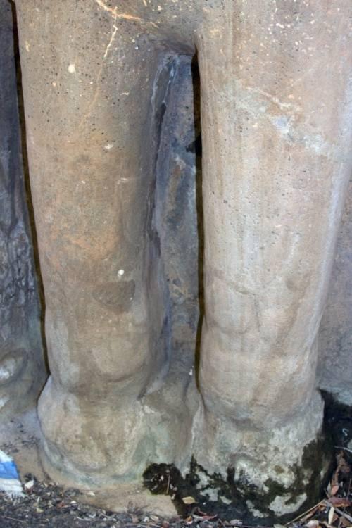 Слоновость ног причины лечение к какому врачу