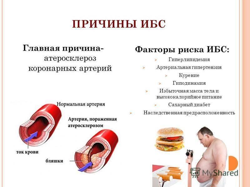 Атеросклероз при сахарном диабете