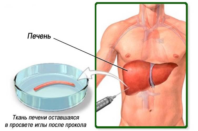 Пункционная биопсия печени - результаты, осложнения