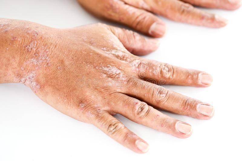 Очаговая лихенификация кожных покровов: диагностика и методы лечения