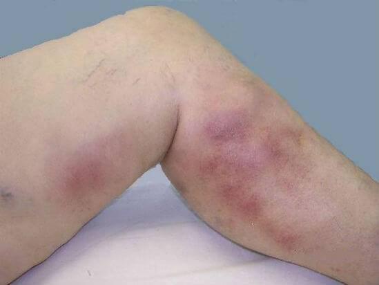 Дерматит на ногах: причины, симптомы и лечение