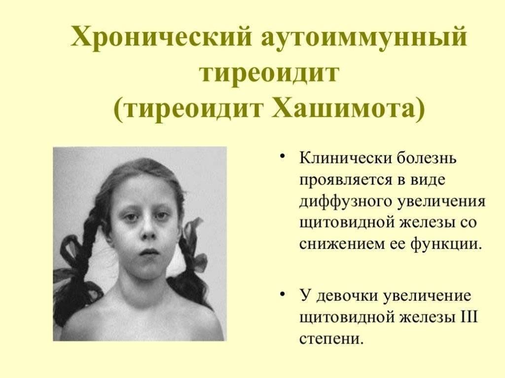 Гиперплазия щитовидной железы у детей лечение