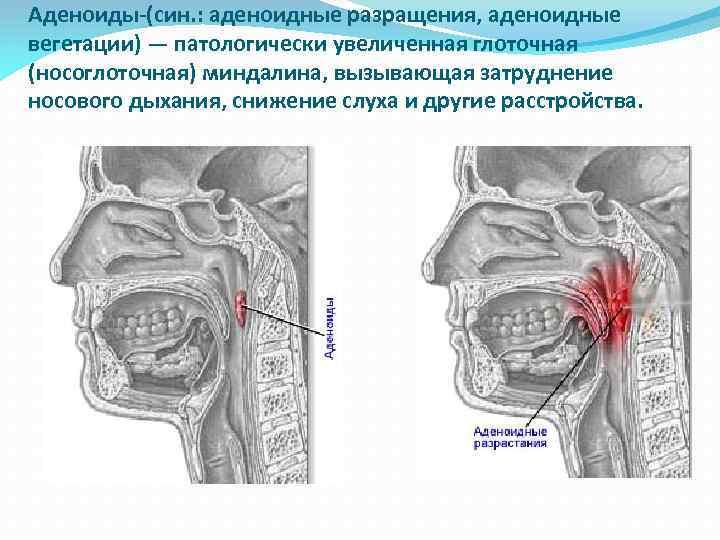 Язычная миндалина: расположение, функции и возможные заболевания