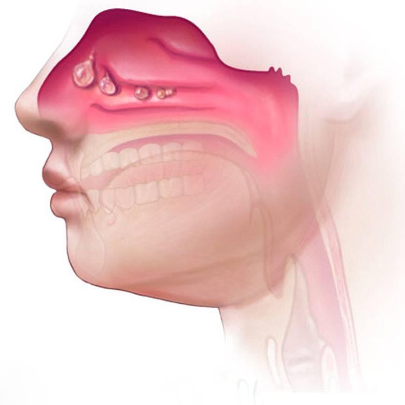 Гипертрофический ринит и его формы: симптомы и лечение
