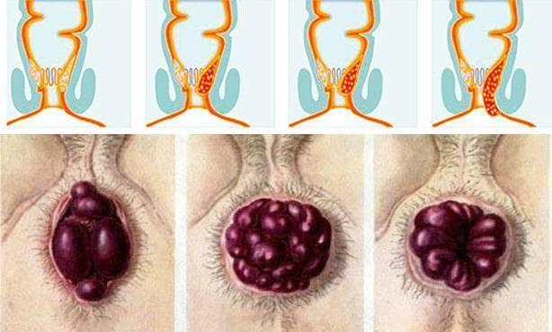 как вправлять геморроидальные узлы