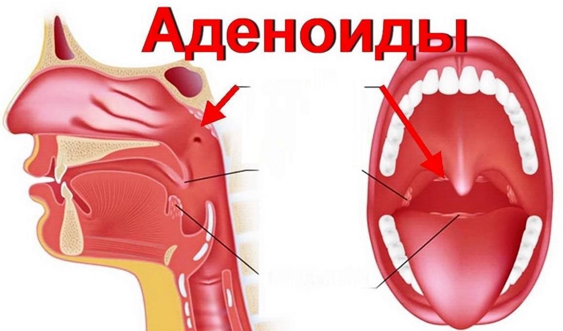 схема лечения аденоидов