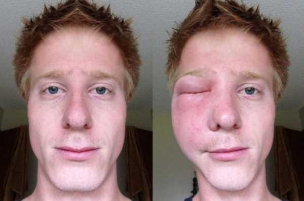 Укусила мошка в глаз — чем снять отек?