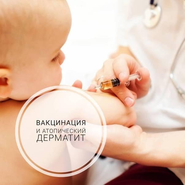 Атопический дерматит и прививка - запись пользователя юльчик (yuliamatveeva) в сообществе здоровье новорожденных в категории прививки - babyblog.ru