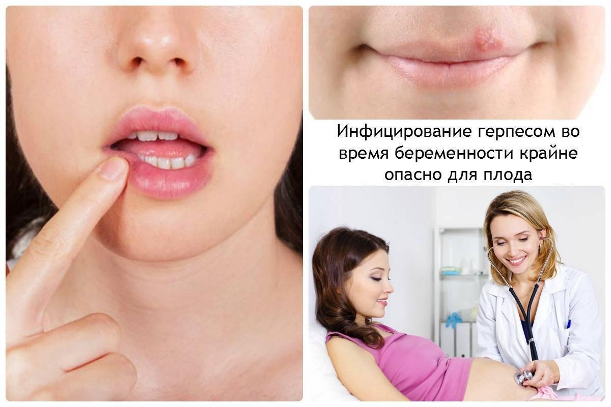 Девочки, кто болел орви во время беременности? повлияла ли болезнь на ребеночка?