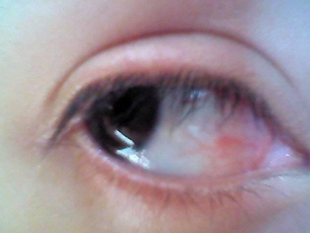 Чем лечить трещину на внешнем уголке глаза. покраснение и боль в уголках глаз с внешней стороны