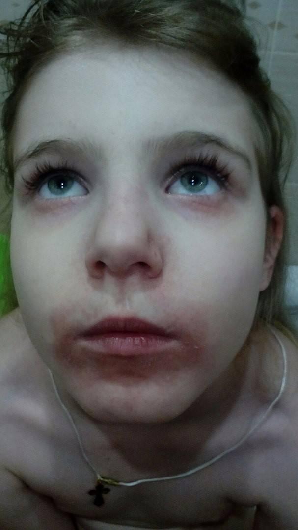 Периоральный дерматит, кто вылечил? - запись пользователя киса-полосатик (sayshell) в сообществе зачатие в категории негинекологические заболевания и зачатие - babyblog.ru