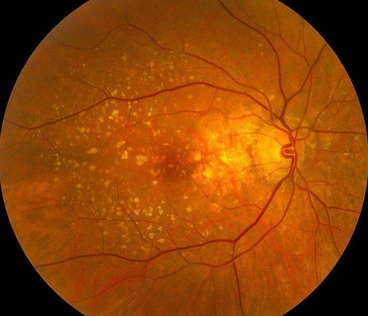 Дистрофия сетчатки периферическая пвхрд. все о глазных болезнях.