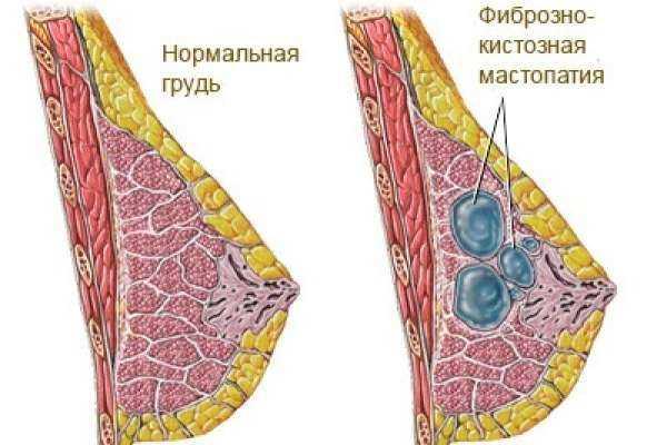 Фиброзно-кистозная мастопатия молочных желез — нужно ли лечить заболевание?