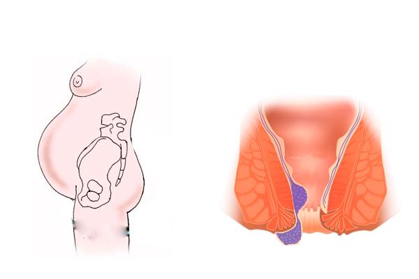 Геморрой во время беременности причины. стоит ли лечить геморрой во время беременности. определение и классификация