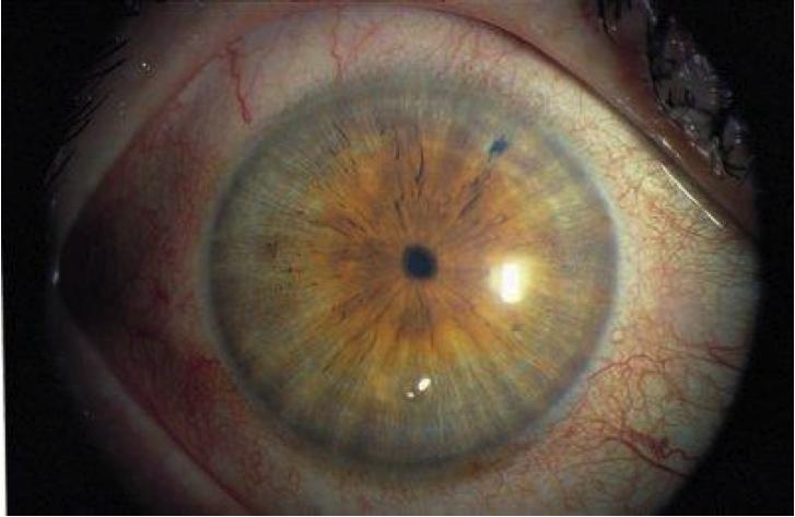 Суженные зрачки - причины и заболевания