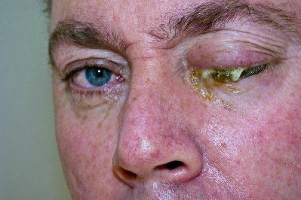 Почему после бани сильно гноятся глаза?