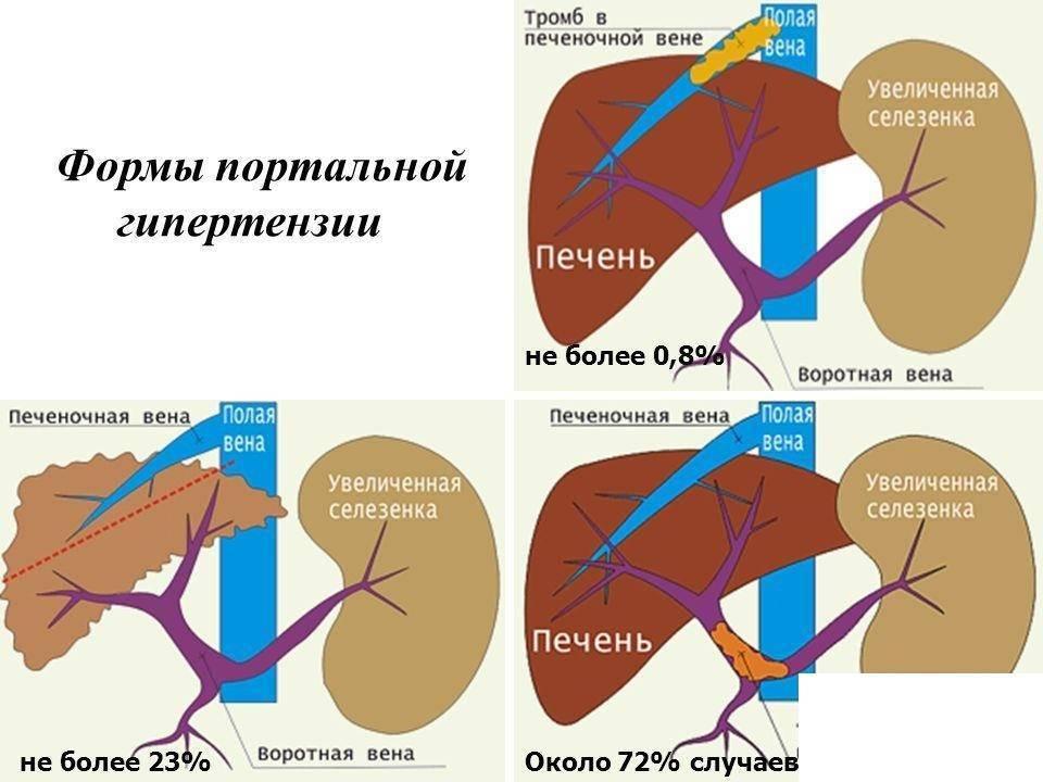 Портальная гипертензия при циррозе печени: симптомы и лечение