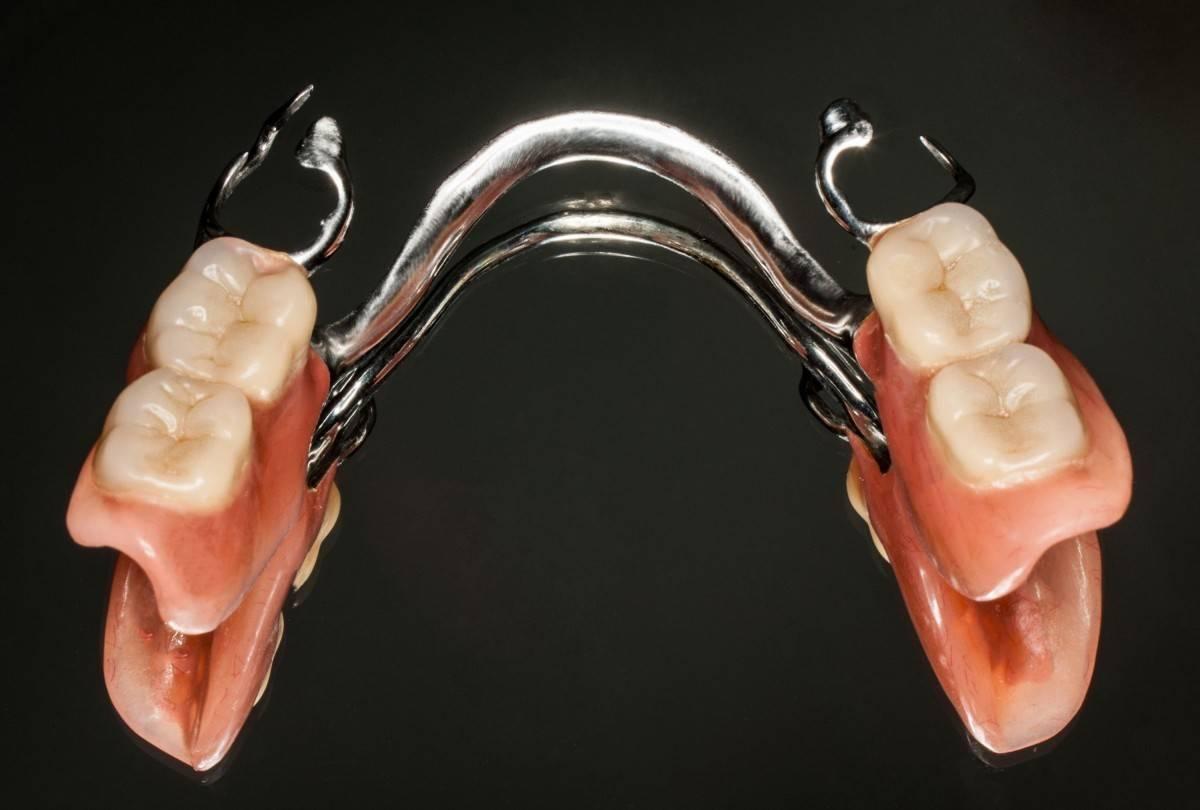 нейлоновые протезы
