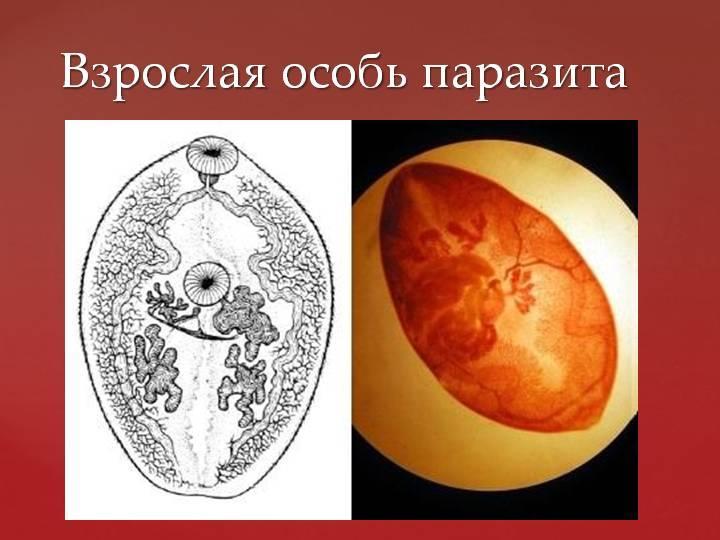 Симптомы и лечение парагонимоза человека