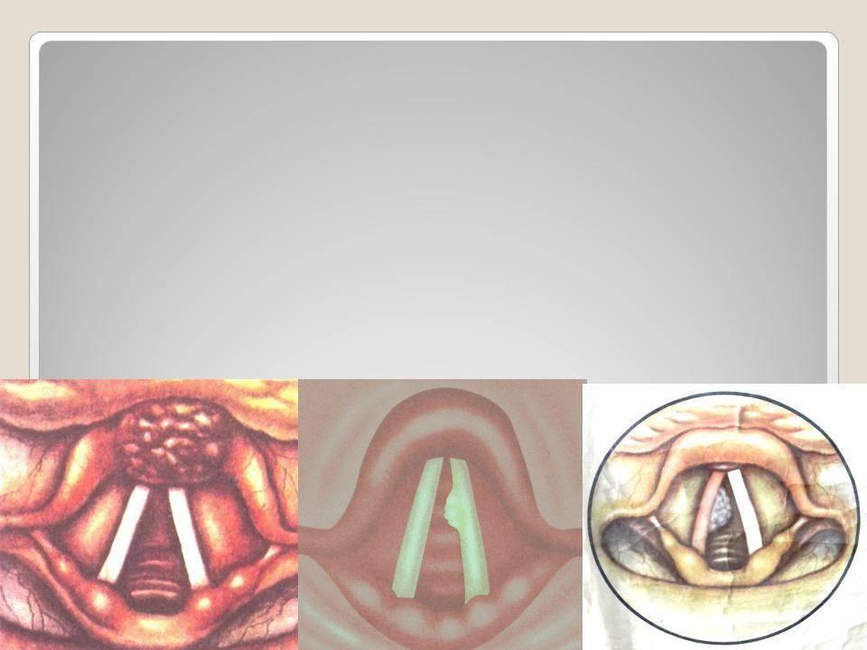 Дисфония: симптомы и причины возникновения