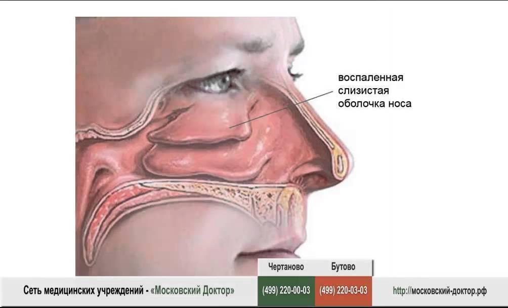 Как снять отек носа: 5 методов скорой помощи и лечения