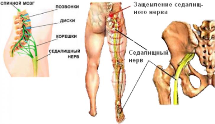 Седалищный нерв: симптомы и лечение в домашних условиях