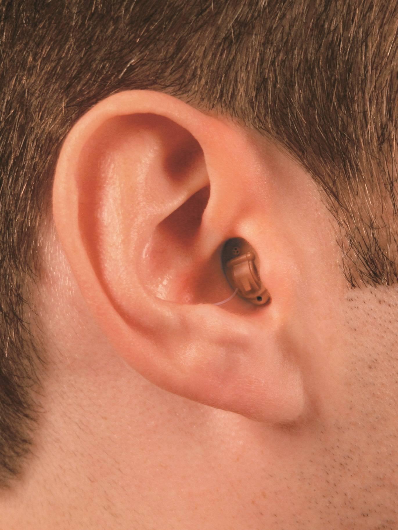 Внутриушные слуховые аппараты: принцип действия и особенности выбора