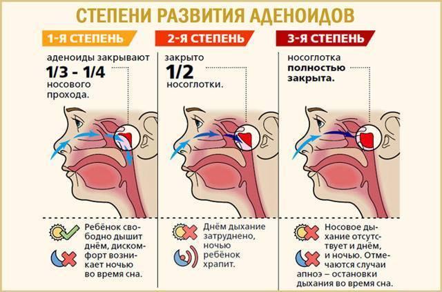 Особенности лечения аденоидов 2 степени у детей