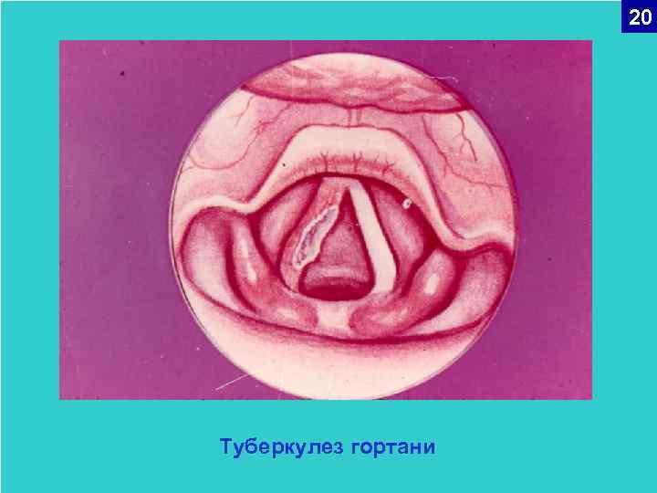 туберкулез гортани симптомы