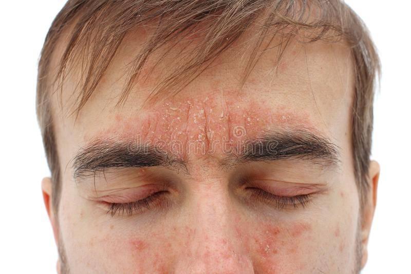 Псориаз на глазах и веках глаз