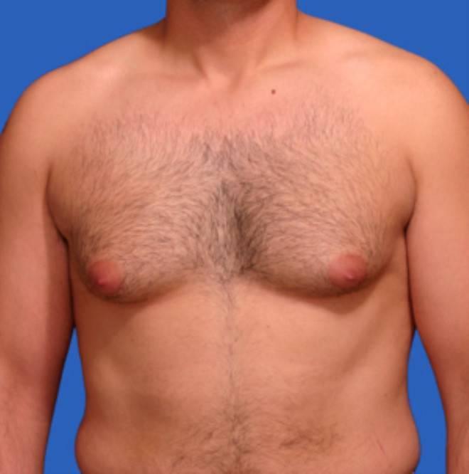 У мужчины болит центр груди