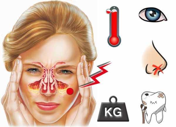 Когда и как болят зубы при гайморите